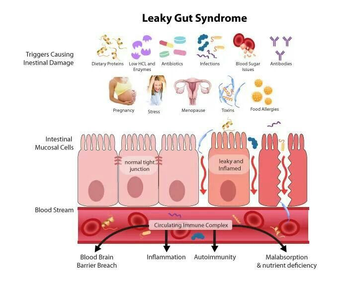how does leaky gut syndrome work overview