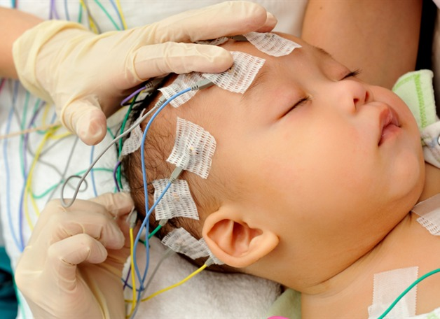 electrodes-eeg-on-child